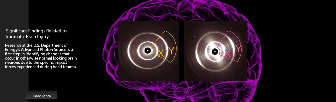 the advanced photon source aps